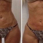 TRAITEMENTS - COOLSCULPTING - HOT SCULPTING - TREATMENTS