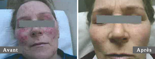 TRAITEMENT COUPEROSE - ROSACEA TREATMENT