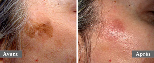 TRAITEMENT DES TÂCHES PIGMENTAIRES - PIGMENTATION MARK TREATMENT