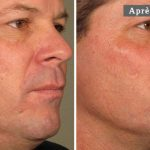 COU HOMME - L'ULTHÉRAPIE – UN LIFTING SANS CHIRURGIE - MAN NECK - ULTHERA TREATMENT - A NON-SURGICAL WAY TO LIFT SKIN