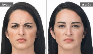 INJECTION DE BOTOX - BOTOX INJECTION