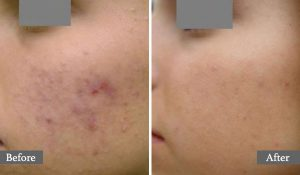 TRAITEMENT DE L'ACNÉ - TRAITEMENT AU LASER - ACNE TREATMENT - AESTHETIC LASER TREATMENT