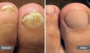 ONYCHOMYCOSE - TRAITEMENT AU LASER - ONYCHOMYCOSIS - AESTHETIC LASER TREATMENT