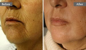 TRAITEMENT AU LASER - RAJEUNISSEMENT DE LA BOUCHE - AESTHETIC LASER TREATMENT - MOUTH REJUVENATION