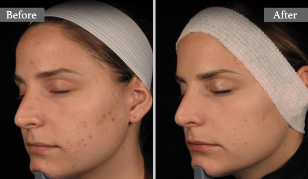 ACNÉ - DERMALINFUSION SILKPEEL - ACNE - THE SILKPEEL DERMALINFUSION
