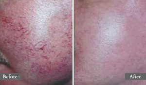 TRAITEMENT AU LASER - AESTHETIC LASER TREATMENT