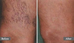 VEINES - TRAITEMENT LASER - VEINS - AESTHETIC LASER TREATMENT